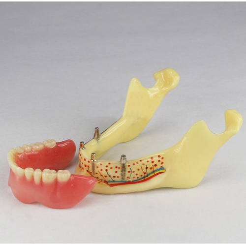 Dental Teeth Implant Model Of Jaw M-2014b