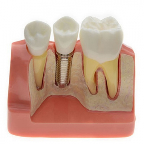 Model Analysis for Dental Implant M2017