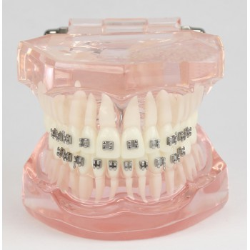 Dental Teeth Malocclusion Correct With Metal Bracket Standard Model M3001