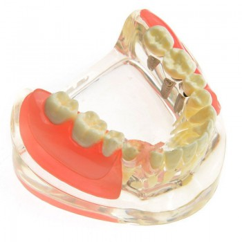 M-6006 Dental Model Contrast Implant Restoration for Missing Molar Teeth