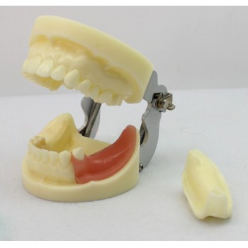 ENOVO Brand Removable Dental Implant Study Model