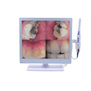Dental 2-in-1 Wired Intraoral Camera with 17 Inch LED Monitor M-978 HDMI USB VGA