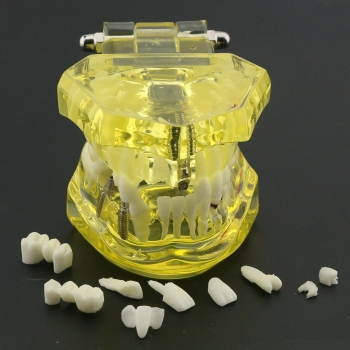 Dental Teeth Model Teach Study Oral Implant Restoration & Pathology 2001 Yellow