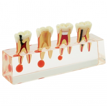 Dental Teeth Model 4-Stage Endodontic Treatment Study Teach Model 4018 01