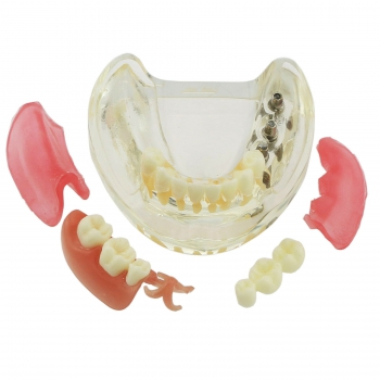 Dental Teeth Model Inferior Removable Restoration Implant Bridge Demo Model 6006