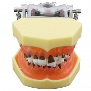 Dental Periodontosis Disease Model Demonstrates Inflamed Gingivae Calculs 4003
