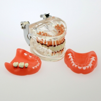 Dental Model Adult Pathological Periodontal Disease Study Teeth Model 4017