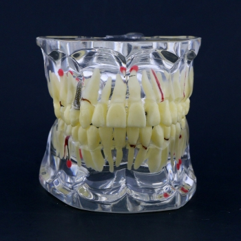 New Dental Teach Study General Adult Pathology Typodont Teeth Model #4001