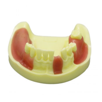 Dental Lower Jaw Implant Practice Model with Gingiva #2004