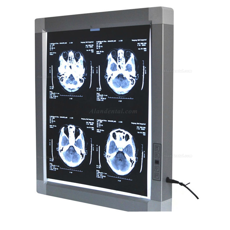JINDETECH X Ray Film Viewer Medical Diagnostic E.N.T LED Illuminator View Box